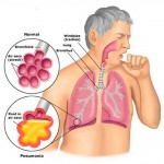 lg-Pneumonia_anatomy