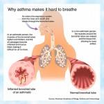 lg-asthma